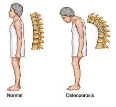 Obat Herbal Tulang Keropos | Pengobatan Osteoporosis Alami