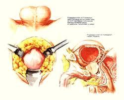 Obat Herbal Penyakit Prostat