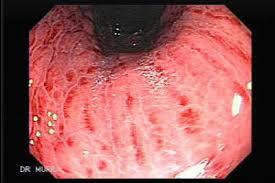 Obat Gastritis Herbal