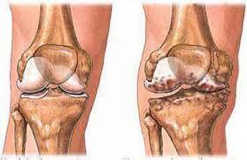 Obat Radang Sendi Lutut Herbal