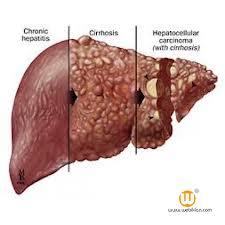 Obat Hepatoma Herbal